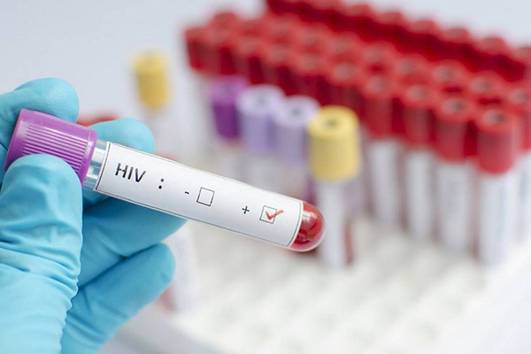 แนวคิดเร่งทดลองผลิตวัคซีนรักษาโรคเอดส์