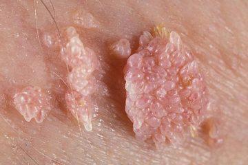 Cockscomb warts